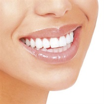 Dantų balinimas lazeriu BIOLASE EPIC