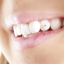 Dantų puošimas deimantais + DOVANA